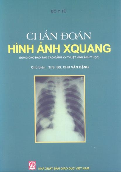 Chẩn đoán hình ảnh Xquang